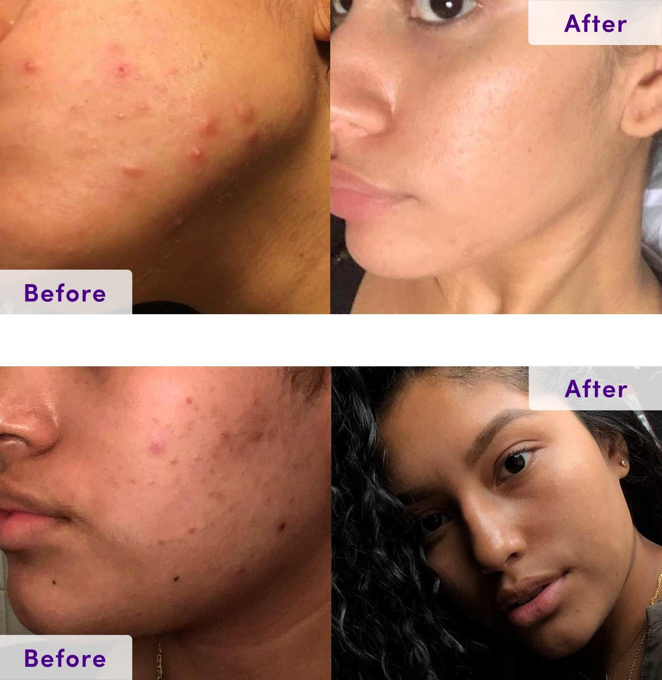 NxN Acne Treatment 4-Step Clear Skin System with Probiotics, Natural  Multi-Fruit Extracts