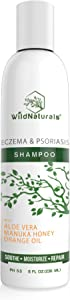 Wild Naturals Eczema Psoriasis Shampoo : 98% Natural, 80% Organic, Sulfate Free, Soothing, Healing, Anti Dandruff, Flaky, Itchy, Dry Scalp Treatment Soap for Seborrheic Dermatitis, Moisturizing, 8oz