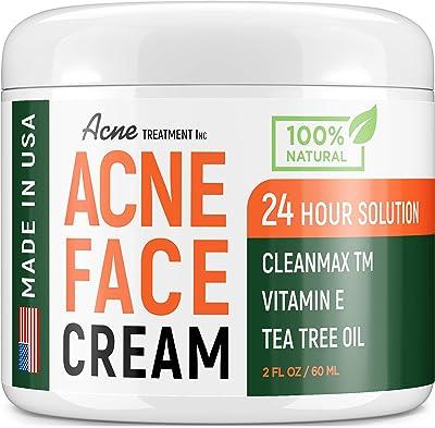Acne Treatment Natural Cream
