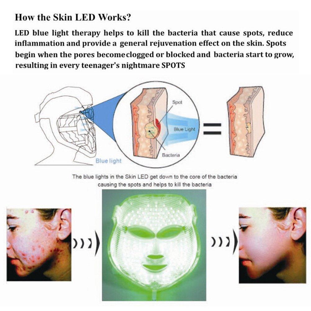 Amazon.com: Face Light Mask Carer 3 Color Red Light Mask Facial Skin ...