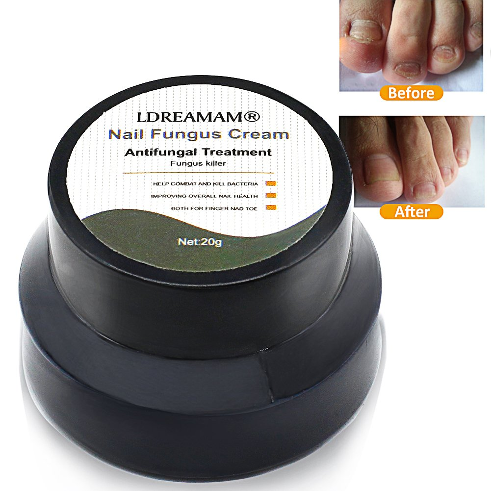 Nagelpilz,Pilz Nagel Behandlung,nagelpilz nagellack,Nagelpilz Öl ...