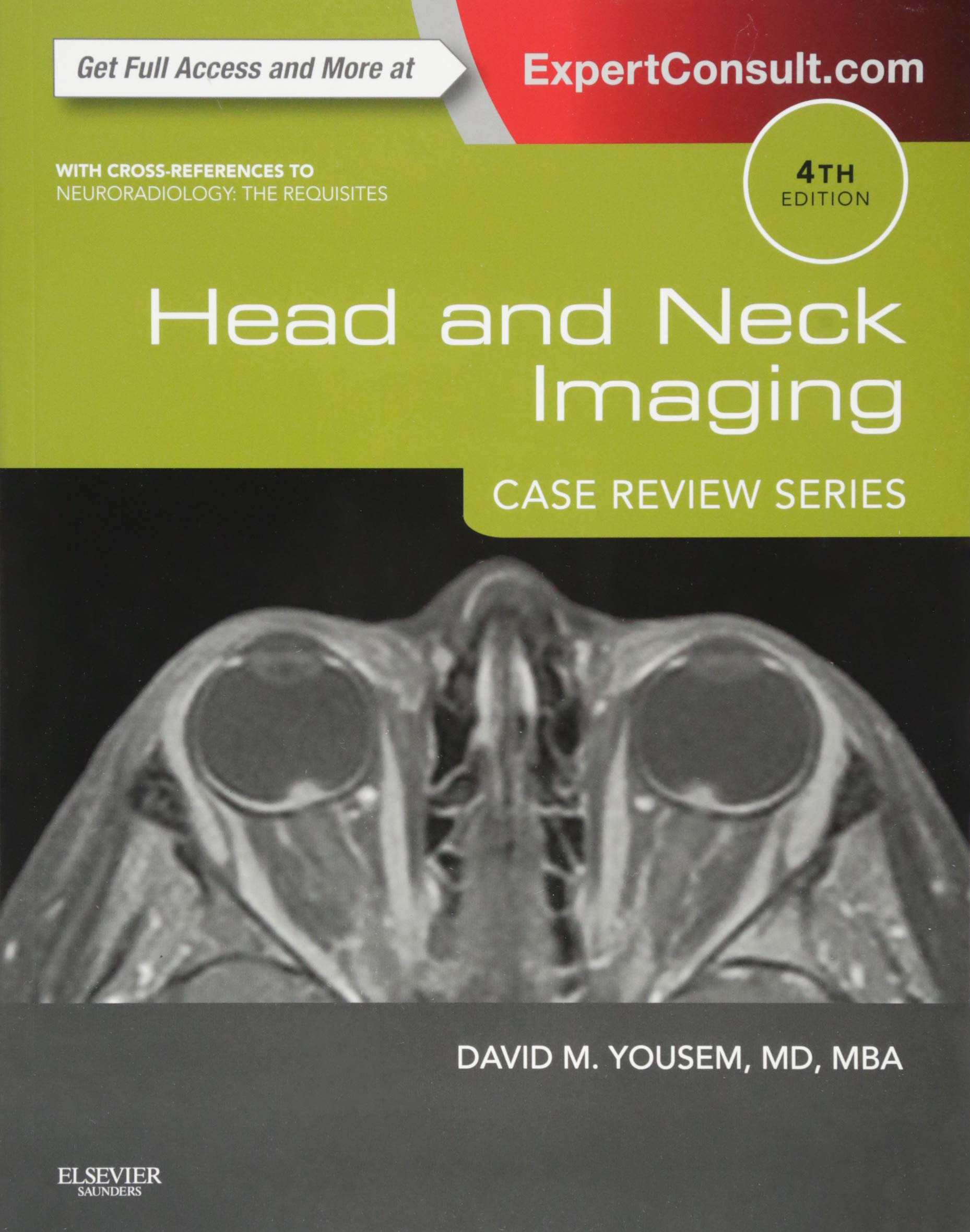 Head and Neck Imaging: Case Review Series, 4e: Amazon.co.uk: David M.  Yousem MD MBA: Books