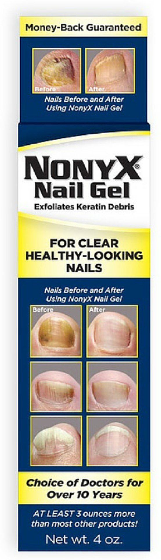 NonyX Nail Gel 4 oz (Pack of 6)