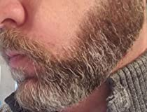 Great for sensitive skin, but not a performer for normal to coarse beard hair