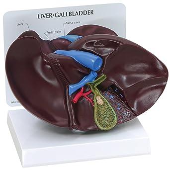 GPI Anatomicals Modelo de hígado/vesícula biliar con cálculos ...