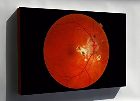 Canvas 24x36; Photograph Of An Eye With Presumed Ocular Histoplasmosis  Syndrome