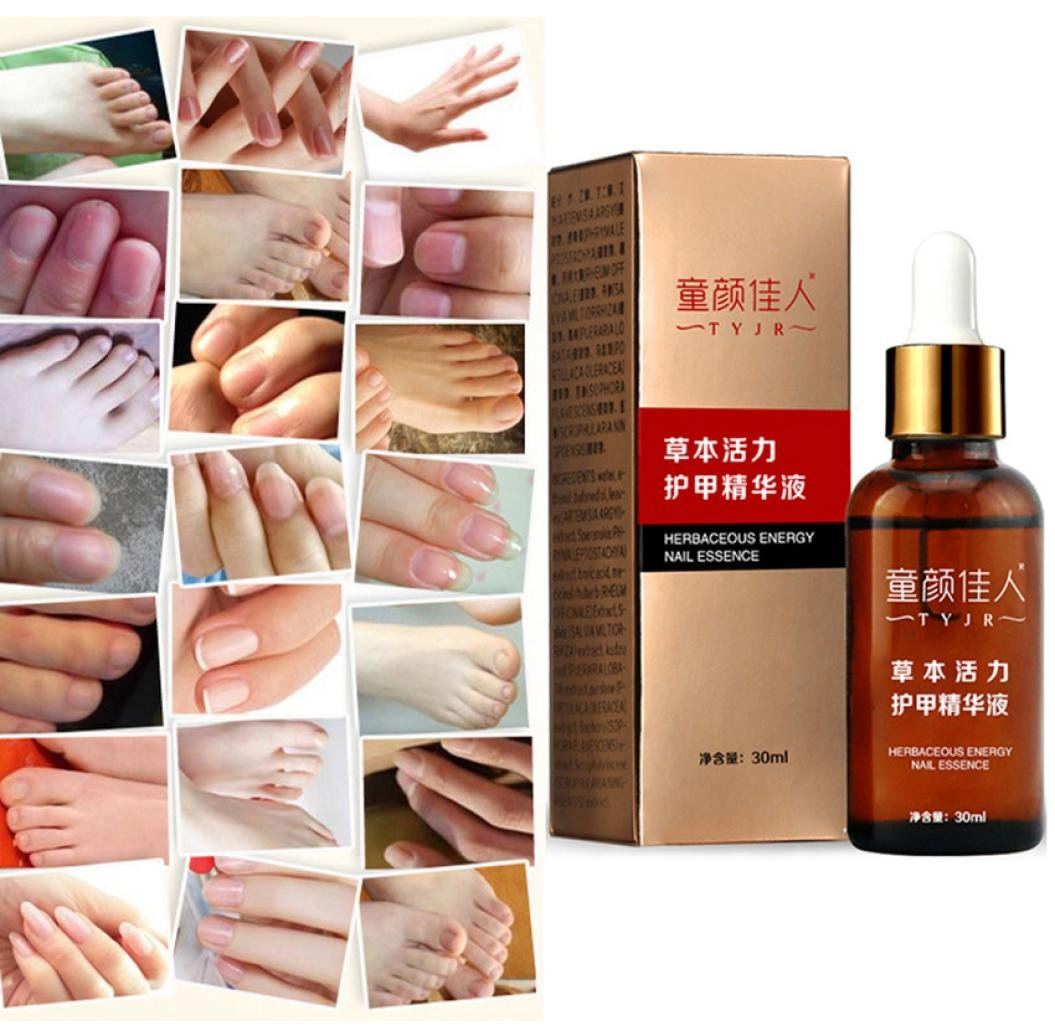 Ularma 30ML Anti Fungal Nail Treatment Toe Nail Finger Fungus Onychomycosis Thickened Ularma-888
