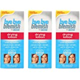 Bye Bye Blemish for Acne Drying Lotion, 1 Ounce (Pack of 3)