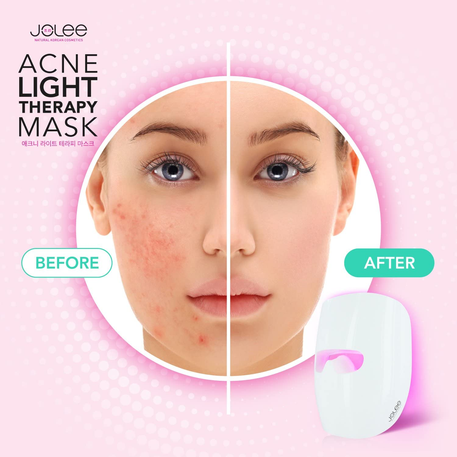 Jolee Led Acne Light Therapy Acne Mask Unlimited Sessions For Treatment Of Mild To Moderate Acne Spots Blackhead Skin Blemishes Clinically