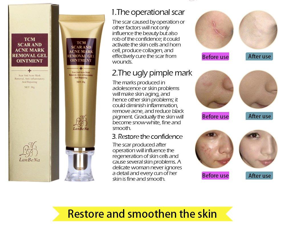 Amazon Com Acne Scar Removal Cream Stretch Marks Face Skin Repair