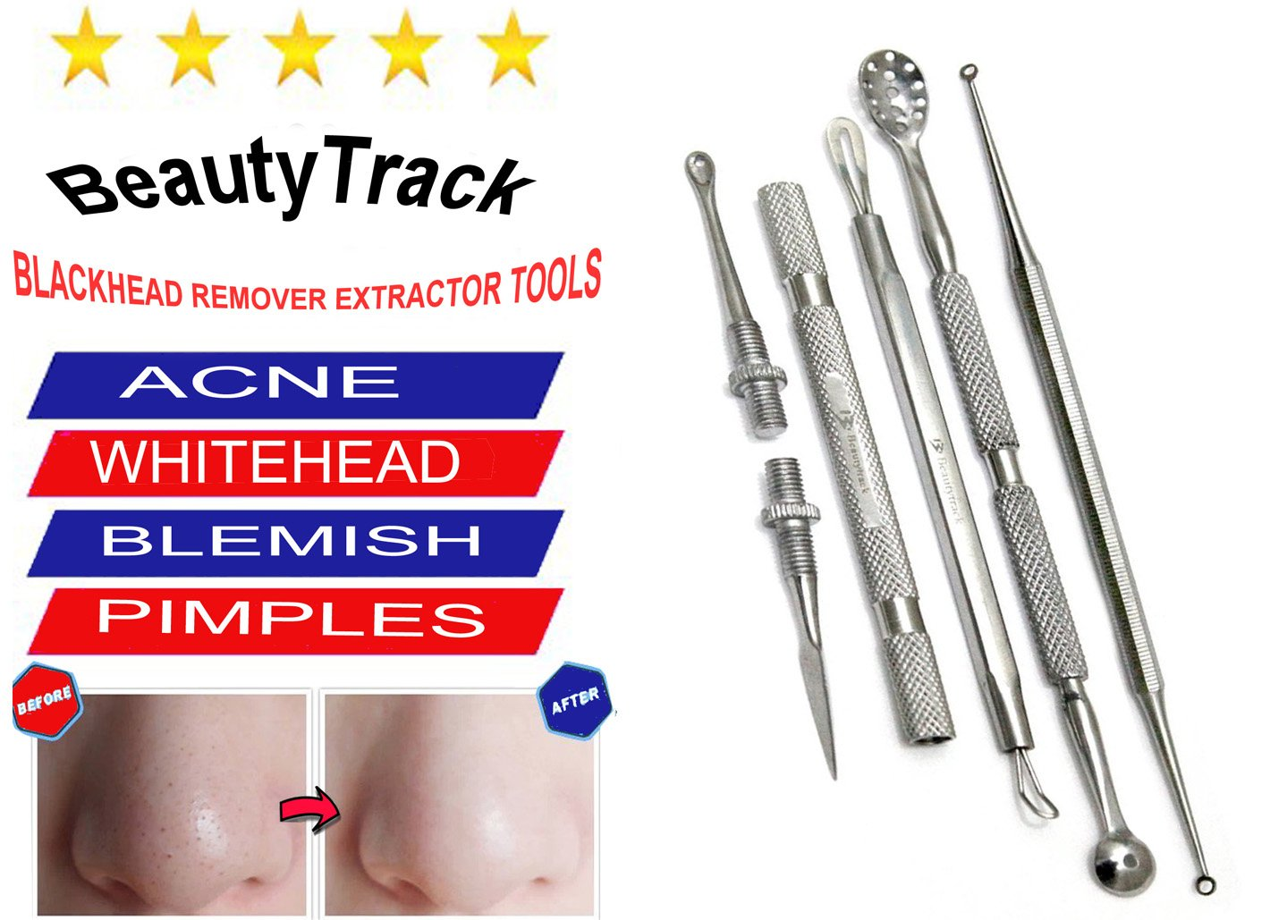 Professional Blackheads Whiteheads Remover Extractor Acne Comedone Facial Tool Double Ring End BeautyTrack