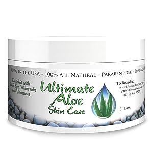 Ultimate Aloe SkinCare Cream for Sunburn, Acne, Psoriasis & Eczema, 8 fl. Oz.