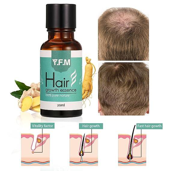 Hair Growth Essence, y.f.m líquido de crecimiento de cabello Aceite para Militar Cabello Tratamiento De Pérdida De Cabello Para Hombres Mujeres 20 ml: ...