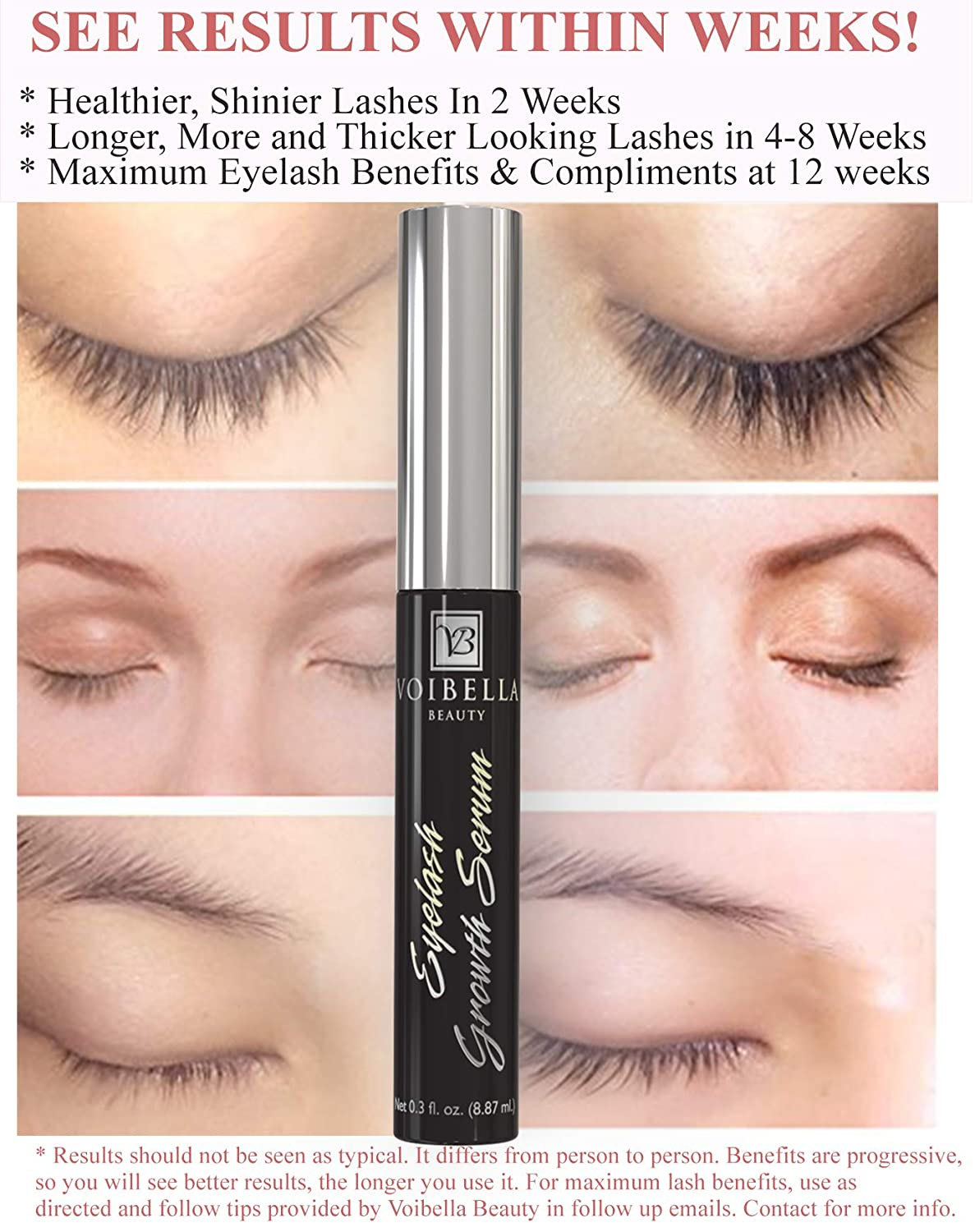 e287458d95f Amazon.com: Voibella Eyelash Growth Serum and Eyebrow Enhancer 8.87ML -  Best Natural Eye Lash Enhancing and Rapid Brow Growing Treatment To  Dramatically ...