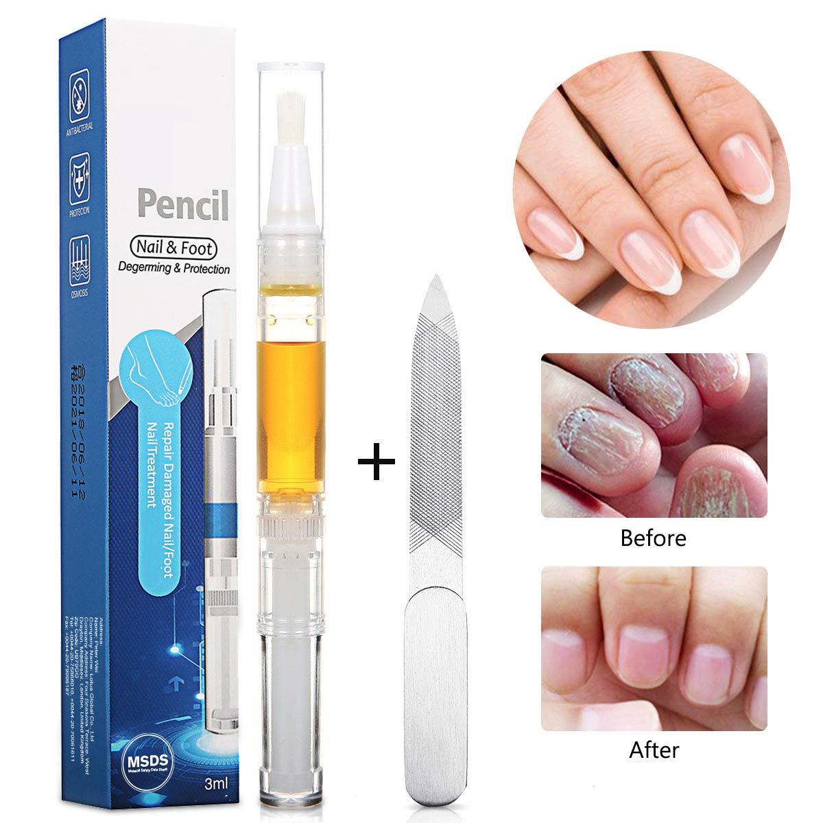 Amazon.com : SKYMORE Nail Oil, Nail Treatment, Nail Care for Foot ...