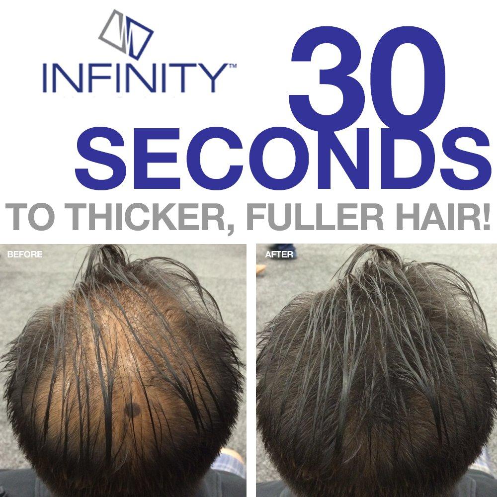 Infinity Hair Fiber - Hair Loss Concealer - Hair Thickening Fiber for Men & Women - Black,60g by Infinity
