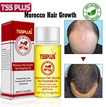 Amazon.com: TSSPLUS New Arrival Andrea Hair Growth Products ...
