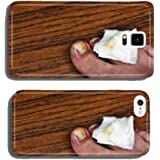 Ingrown toenail with dressing cell phone cover case Samsung S5