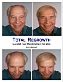 Total Regrowth: Natural Hair Restoration for Men