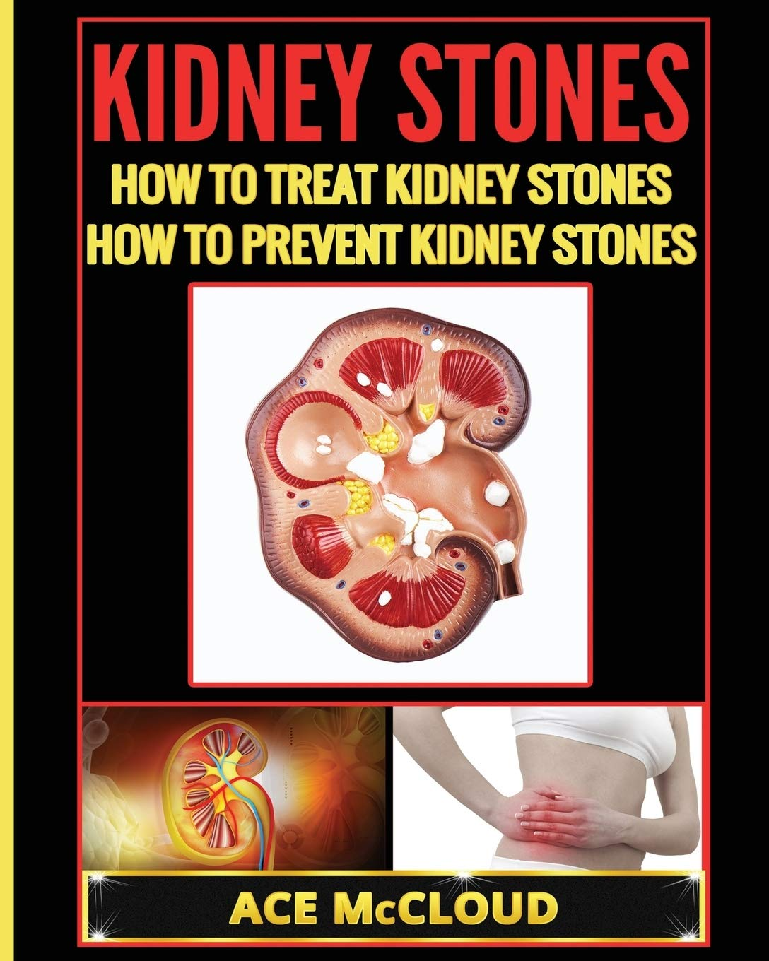Kidney Stones How To Treat Kidney Stones How To Prevent Kidney Stones Kidney Stone Treatment Prevention Guide With All Amazon Co Uk Mccloud Ace 9781640480469 Books