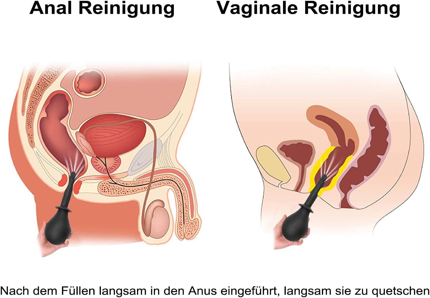analsex reinigung