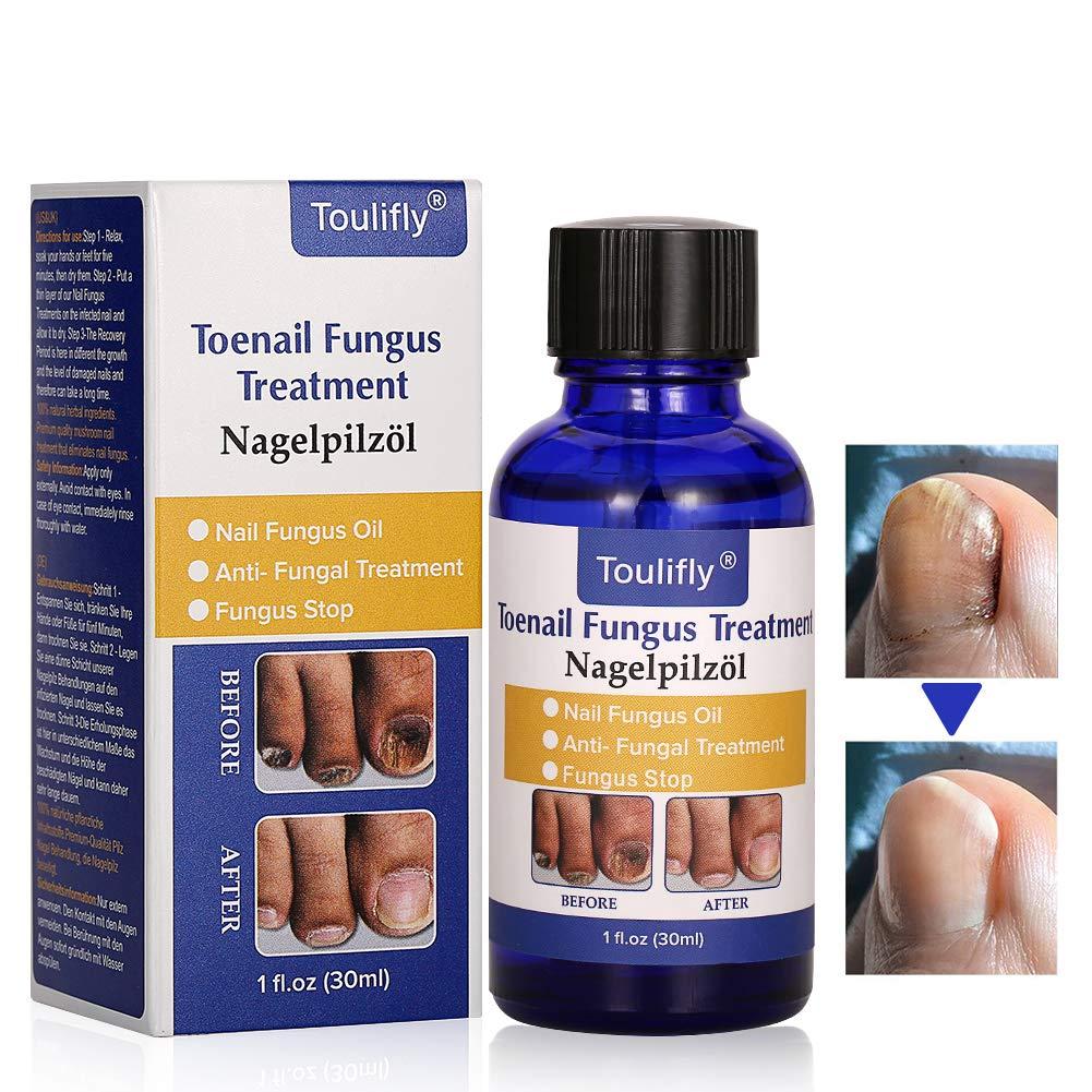 Nail Repair, Natural Nail Treatment, Maximum Strength Nail Solution, Maximum Strength Fungal Toenail Solution by Cherioll