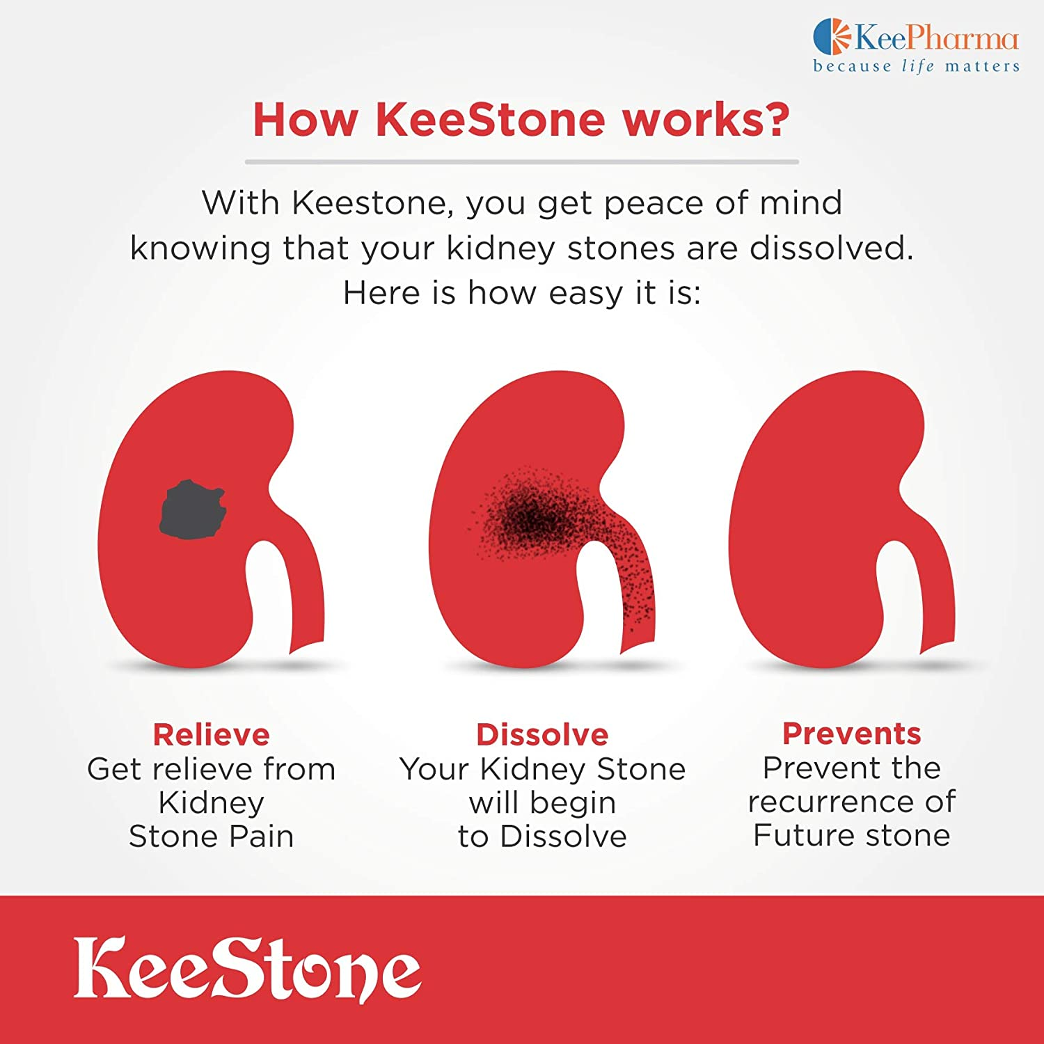 Buy Kee Pharma Kee Stone Ayurvedic Medicine For Kidney Stone Dissolve Kidney Stones Pure Organic 60 Pills Support Urinary Tract Health Online At Low Prices In India Amazon In