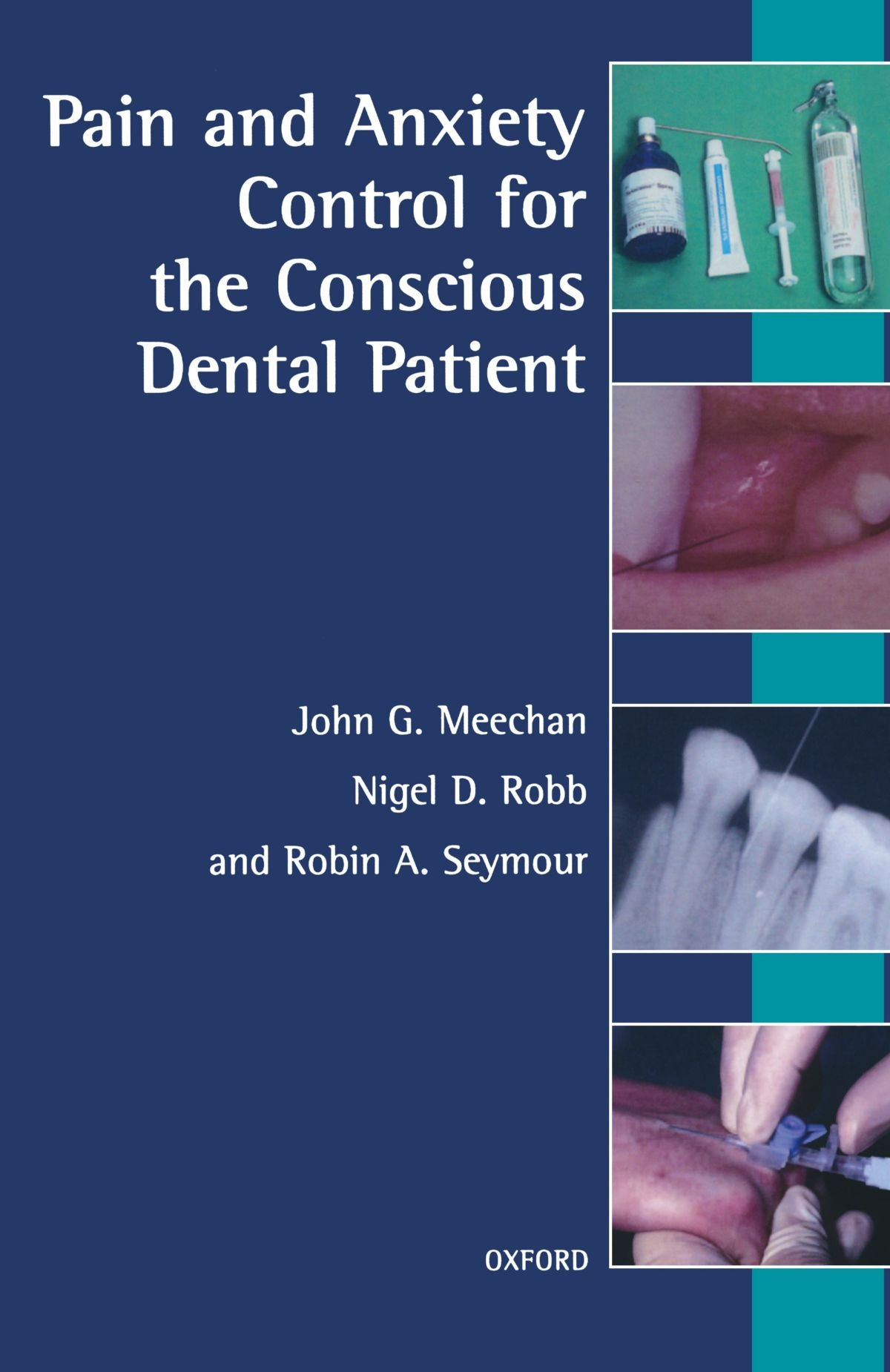 Pain and Anxiety Control for the Conscious Dental Patient by Oxford University Press
