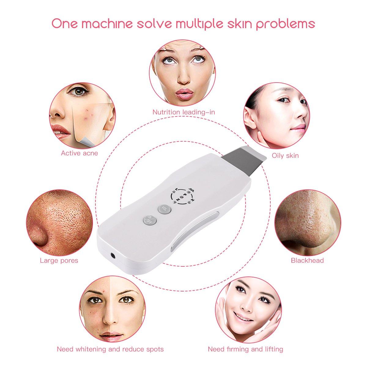 Skin Scrubber, CkeyiN Ultrasonic Rechargeable Portable Facial Skin Cleaner Anion Face Skin Peeling Skin Rejuvenation Beauty Device, Gentle Peel Dermabrasion Anti-Age Device