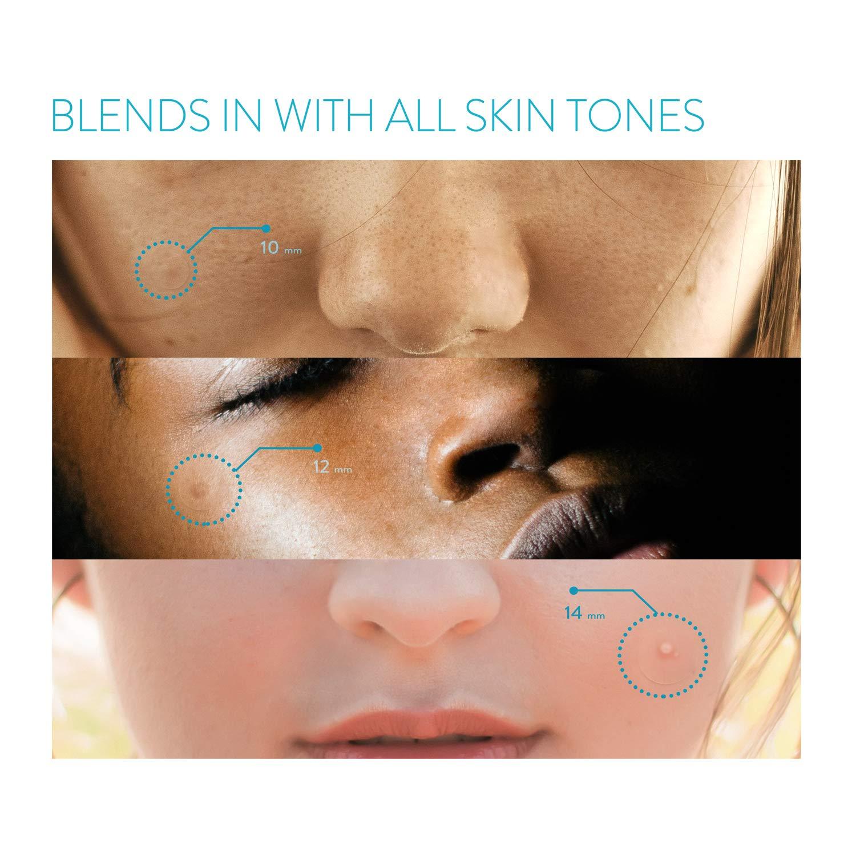 Amazon.com: Cuidado del acné Parche para granos ...