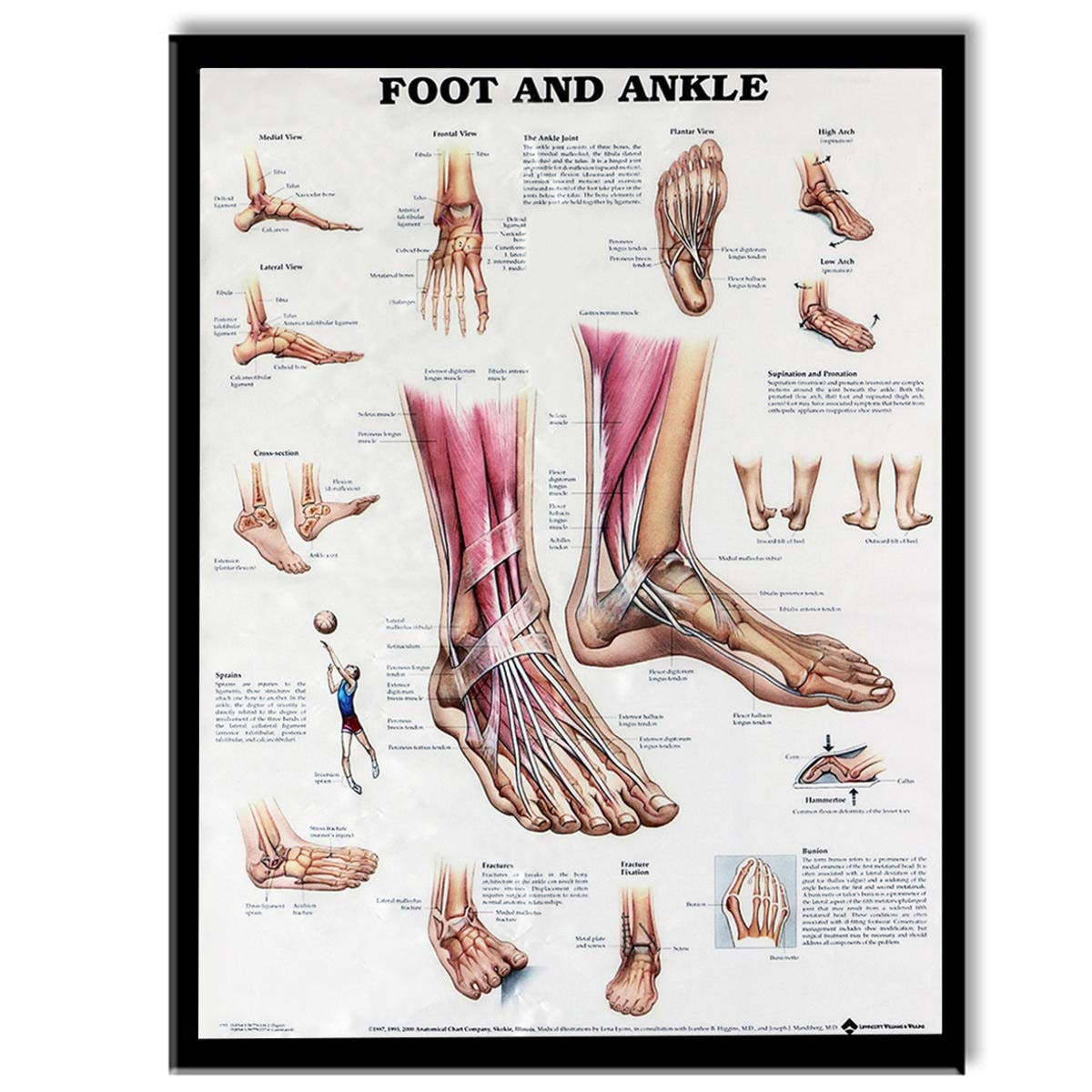 Amazon Okil Anatomy Of Foot And Ankle Poster Anatomical Chart
