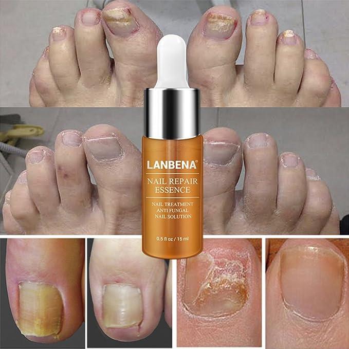 Ruier-hui Tratamiento de reparación de uñas, 15Ml Reparación de uñas Cuidado de uñas con uñas Archivo Antibacteriano Blanqueamiento Solución de reparación ...