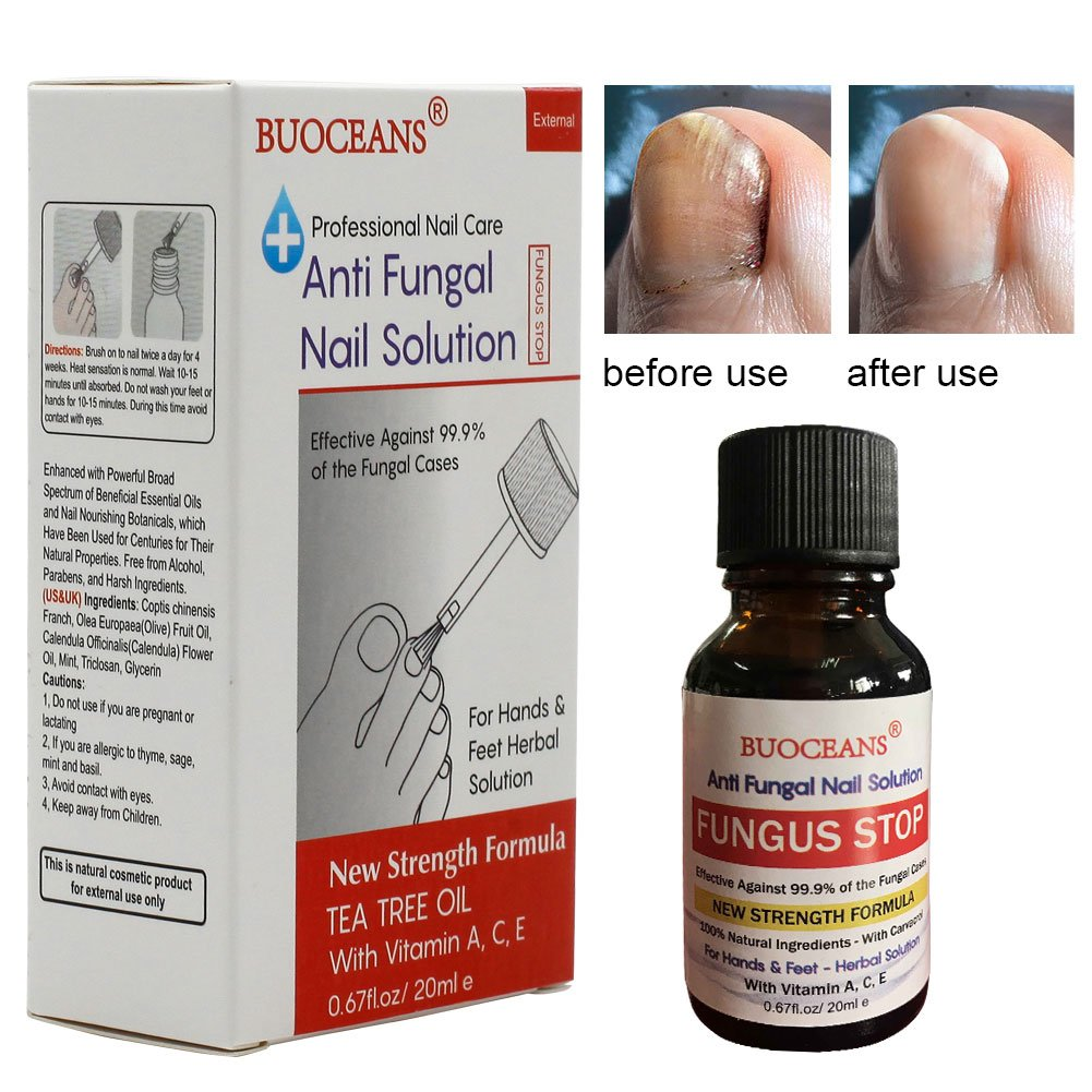 Fungus Stop, Fungal Nail Oil, Anti Fungus Nail Treatment, Effective against nail fungus, Anti fungal Nail Solution, Toenails & Fingernails Solution, Restores Toenail Fungus, Clear, 25 ml