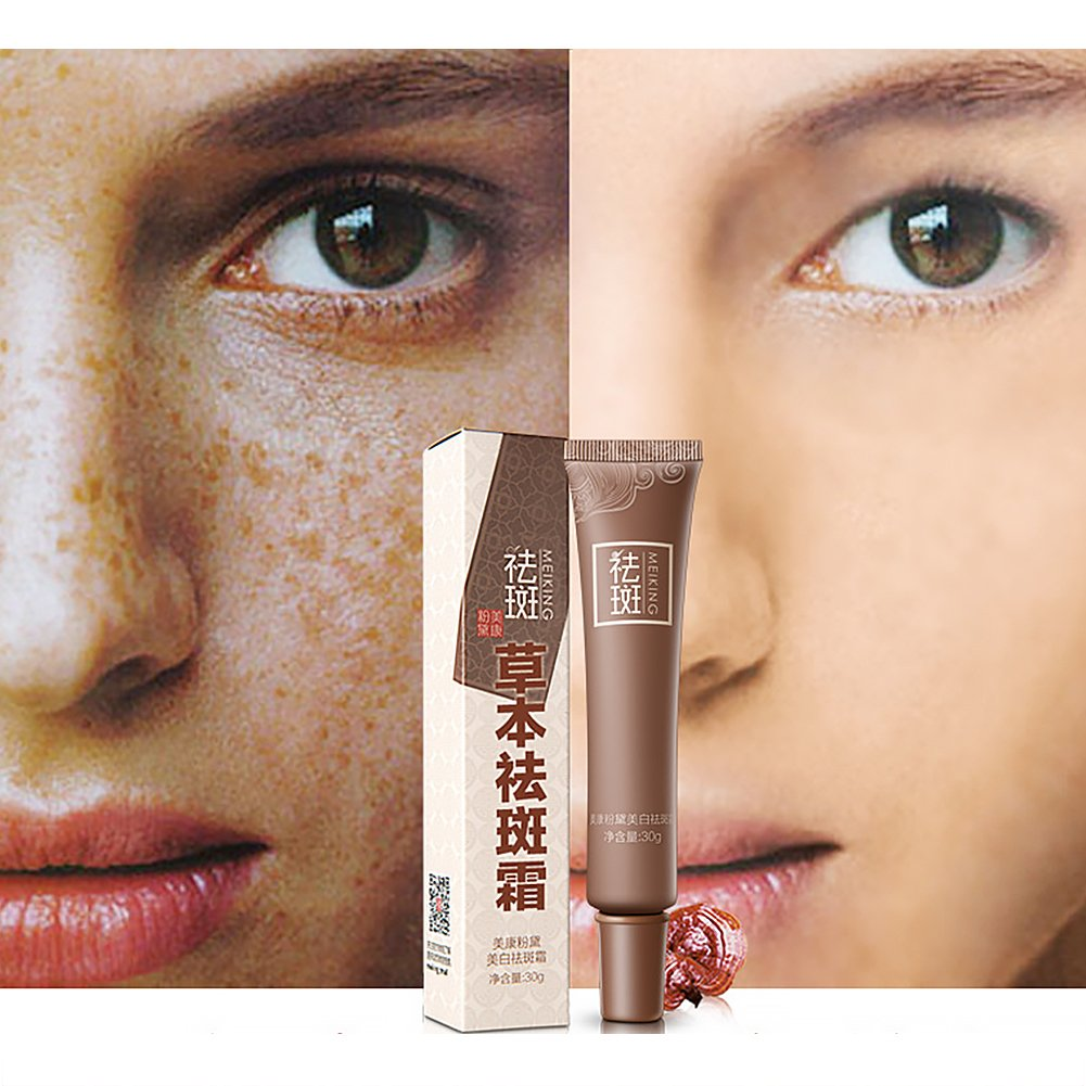 Amazon Skin Whitening Cream Age Spots Dark Spot Corrector