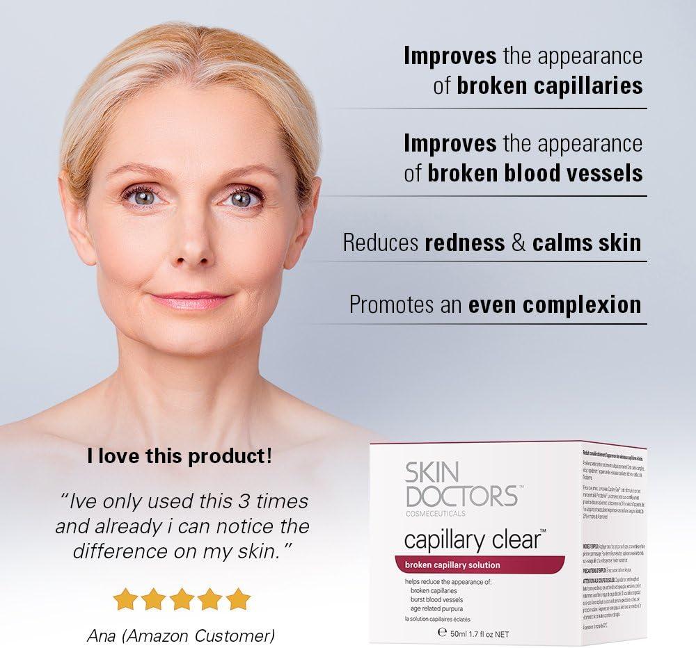 broken capillaries on face treatment cream