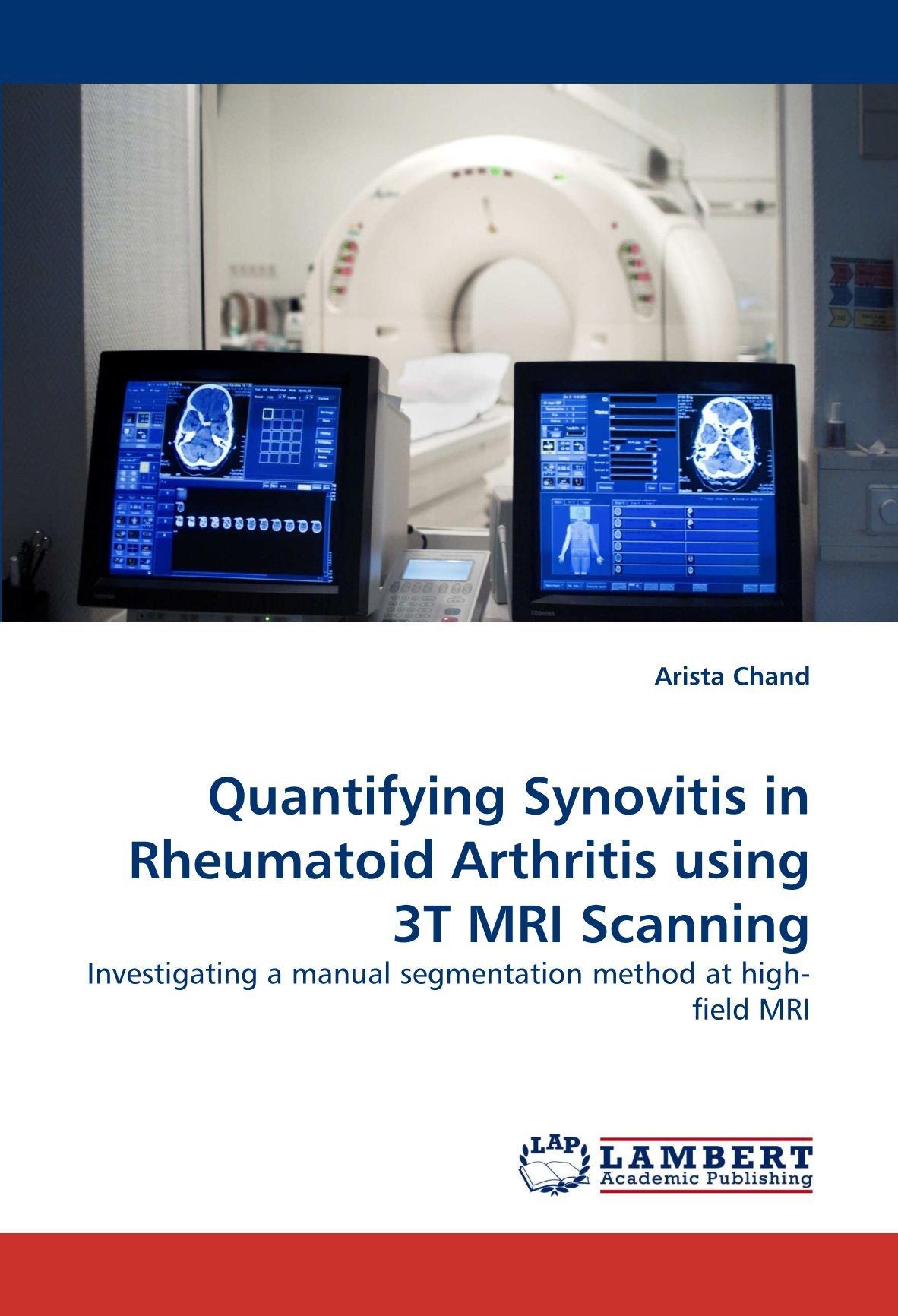 Download Quantifying Synovitis in Rheumatoid Arthritis using 3T MRI Scanning: Investigating a manual segmentation method at high-field MRI ebook