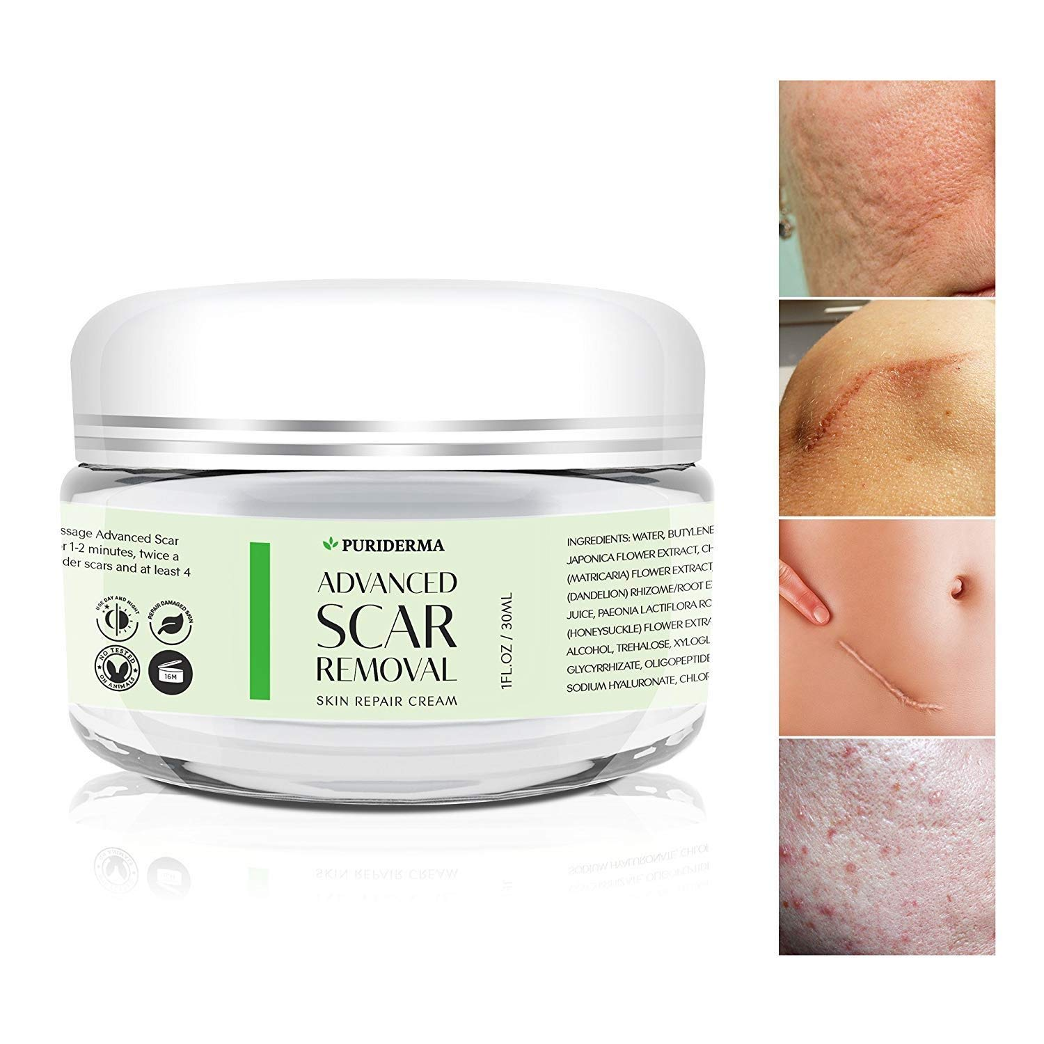 Scar Removal Cream - Advanced Treatment for Face & Body, Old & New Scars from Cuts, Stretch Marks, C-Sections & Surgeries - With Natural Herbal Extracts Formula - (30 ml) PuriDerma
