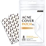 Avarelle Acne Pimple Patch (8 Count) Absorbing Hydrocolloid Spot Treatment with Tea Tree Oil, Calendula Oil and Cica…