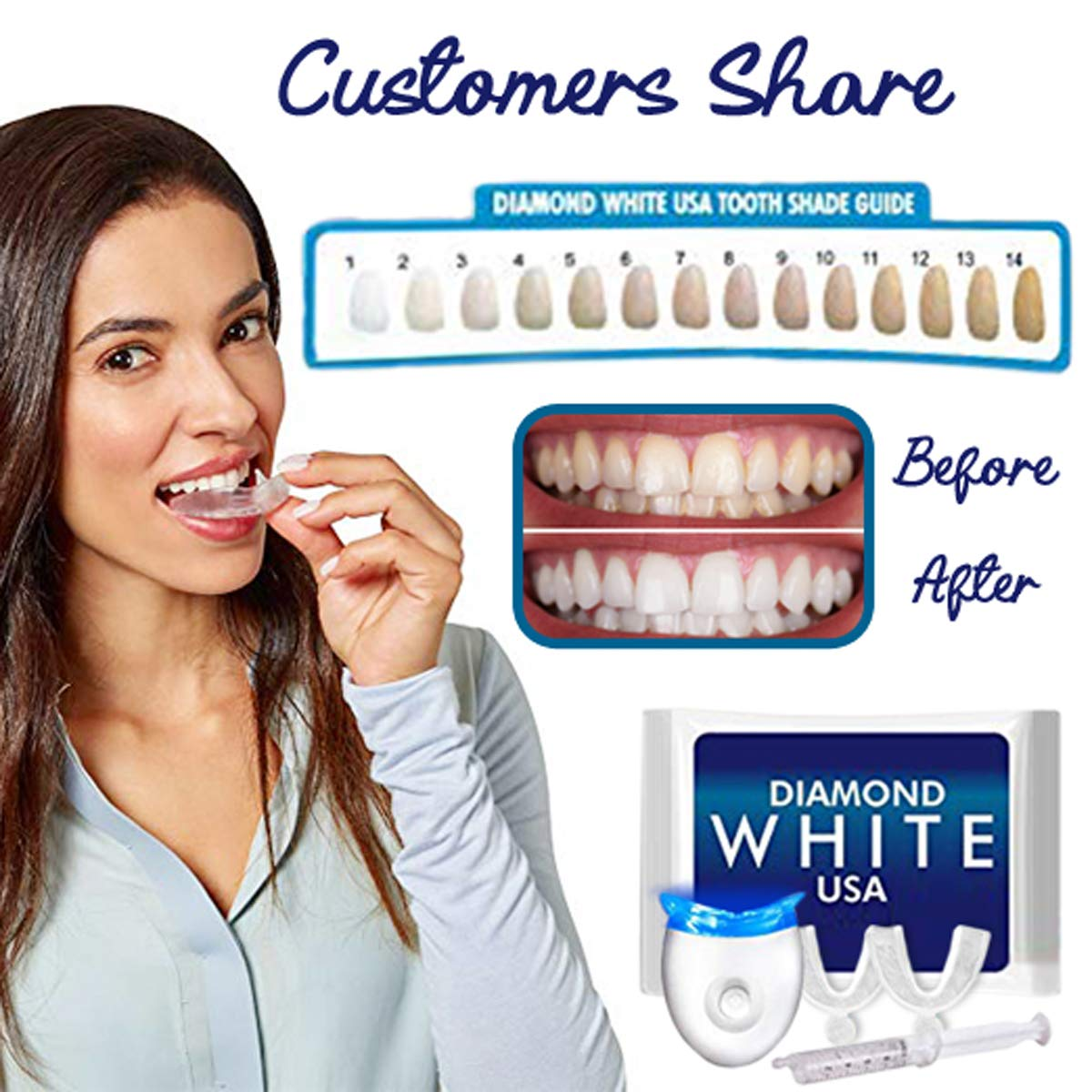 Diamond White Usa >> 3d Teeth Whitening Kit With Lifetime Gel Refills From Diamond White Usa