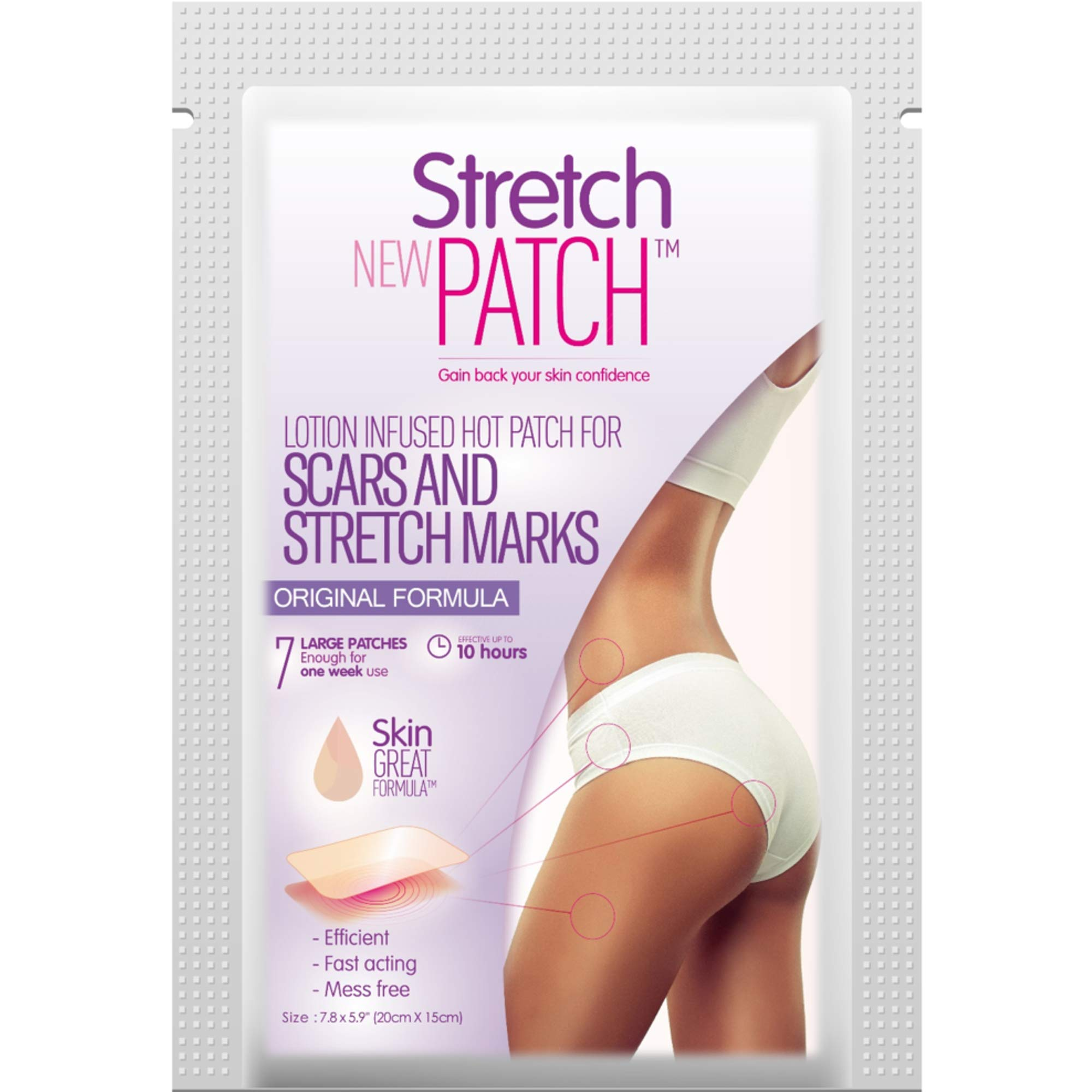 Stretch Patch ORIGINAL Formula, Lotion Infused Hot Patch for Scars and Stretch Marks, 7 ea (20 x 15cm) by Stretch Patch