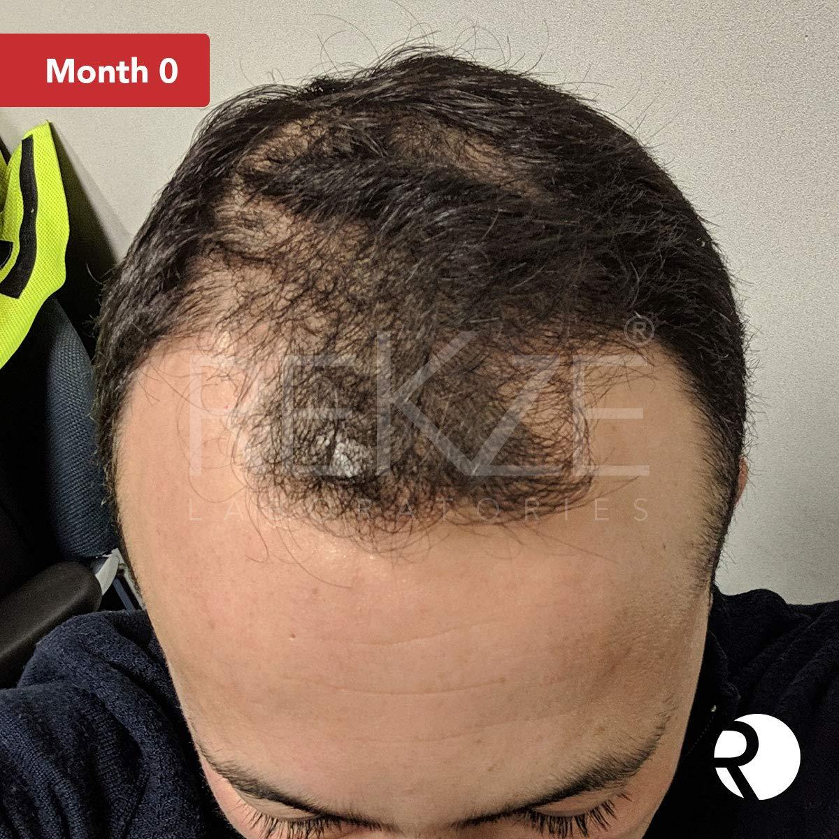 ... promueve el crecimiento rápido del vello en hombres y mujeres, innovador producto de soporte para el rebrote, bloqueador DHT, engrosamiento del cabello, ...
