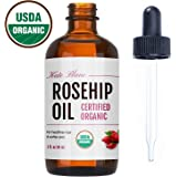 Rosehip Oil by Kate Blanc. USDA Certified Organic, 100% Pure, Cold Pressed, Unrefined. Reduce Acne Scars. Essential Oil for Face, Nails, Hair, and Skin. Natural Moisturizer. 1-Year Guarantee
