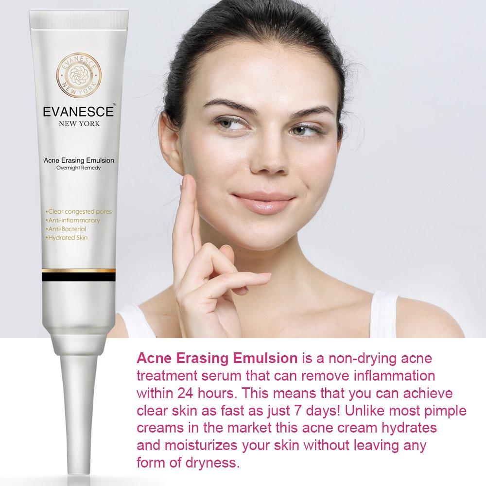 Acne Treatment York