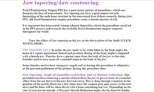Amazon Facial Feminization Surgery Ffs Procedures Appstore For