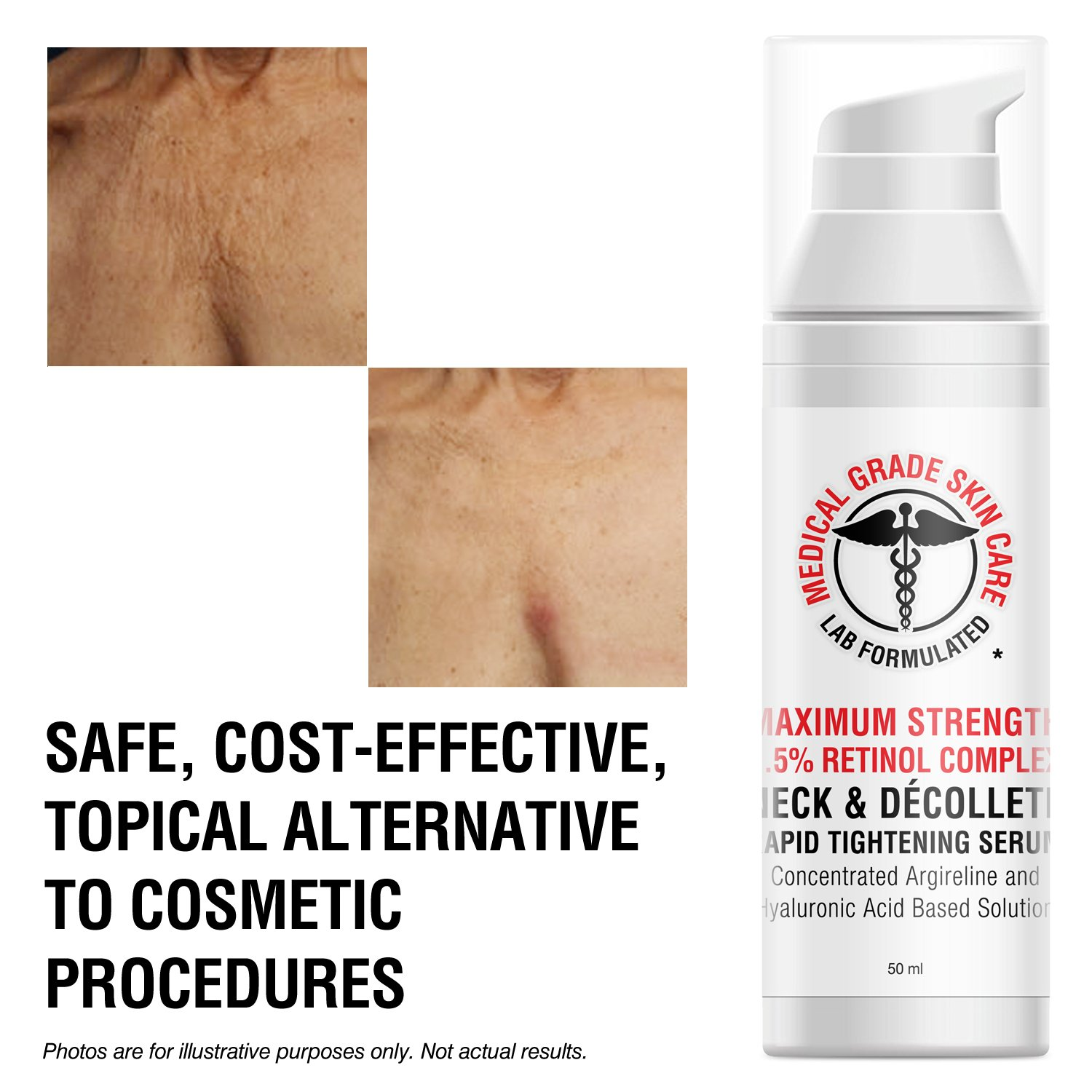 Neck & Décolleté Tightening Serum   Best Anti-Aging Firming Neck Cream Made With Maximum Strength 2.5% Retinol Complex   Concentrated With Argireline and Hyaluronic Acid by SkinPro (Image #6)