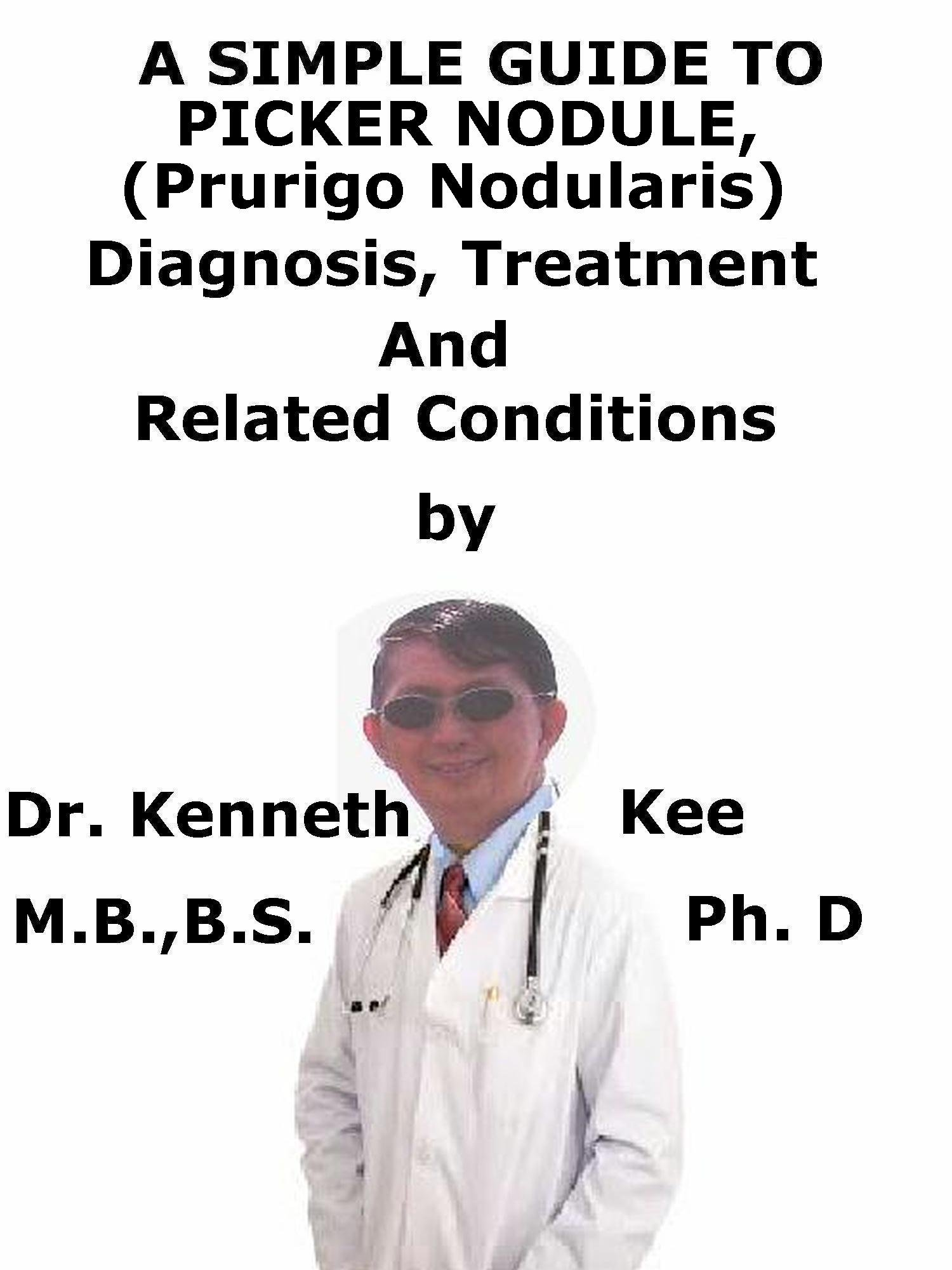 A Simple Guide To Picker Nodule  Prurigo Nodularis  Diagnosis Treatment And Related Conditions  English Edition