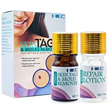 Amazon Com Skin Tag Remover Skin Tag Removal For Your Skin Beauty