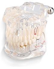 Yosoo Transparent Adult Pathologies Dental Dentist Implant Demonstration Periodontal Disease Assort Teeth Gums Tooth Care Teaching Study Standard Typodont Model - Removable