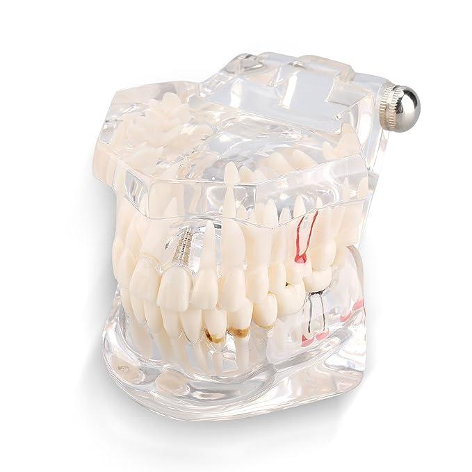 7 opinioni per Yosoo Trasparente Modello Dentistico Rimovibile Orale Dental Attrezzo Pedagogico