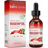 100% Pure Rosehip Oil - 2 OZ - Certified ORGANIC - Cold pressed & unrefined - NON Greasy HIGH absorbency - Use daily - Anti a
